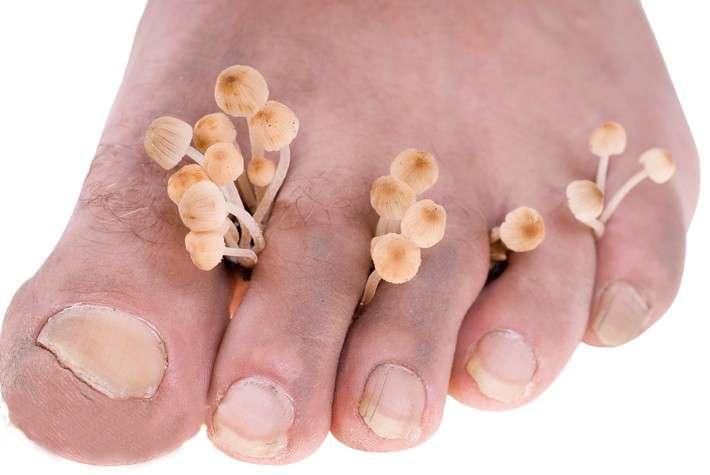 неприятный запах от грибка ног