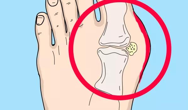Почему выпирает косточка на ноге и как с этим бороться