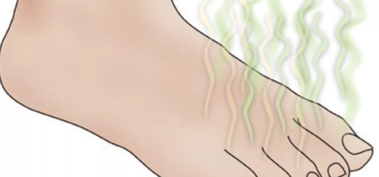 Неприятный запах ног. Как избавиться