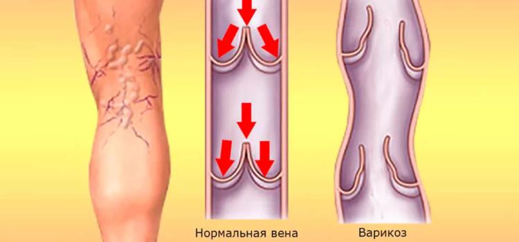 Как помочь своим ногам при варикозном расширении вен