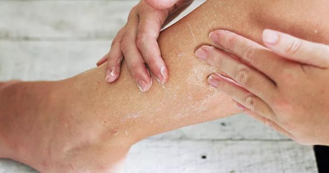 Как ухаживать за сухой кожей ног?