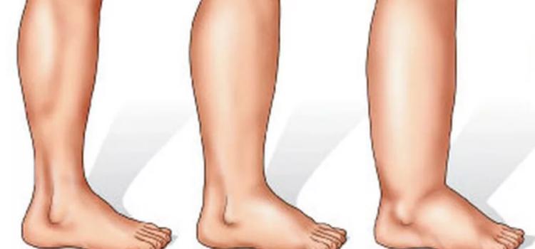От чего отекают ноги?