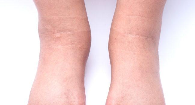 Почему отекают ноги у беременных и как с этим справиться