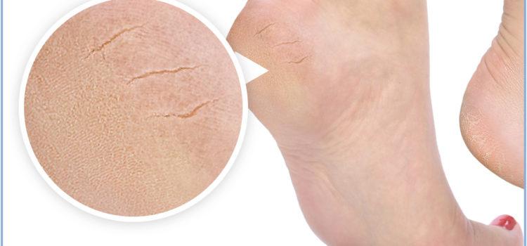 Как избавиться от трещин на пятках? Советы косметологов