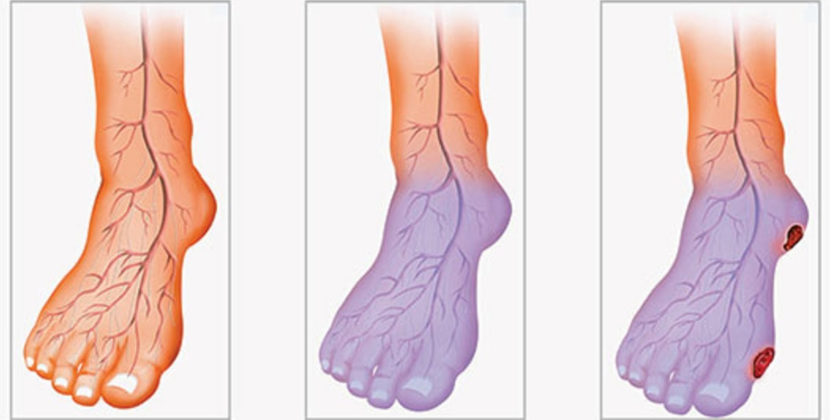 Влияние плохого кровообращения на ноги