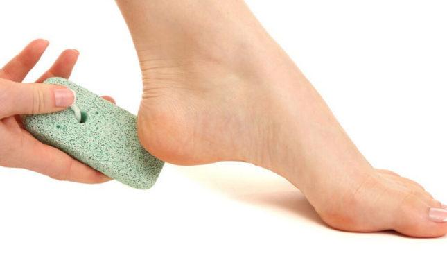 Советы дерматолога: ухаживать за трещинами на пятках – легко!
