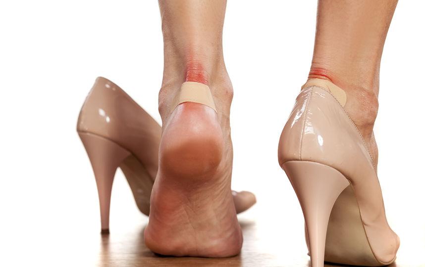 натёртые и уставшие ноги в обуви с каблуком
