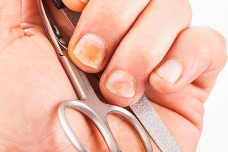 держит в руках маникюрные инструменты, а на ногтях грибок